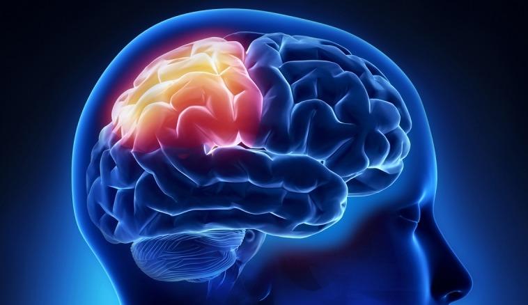 هل صلاة الفجر تقي من جلطات المخ؟ (فيديو)