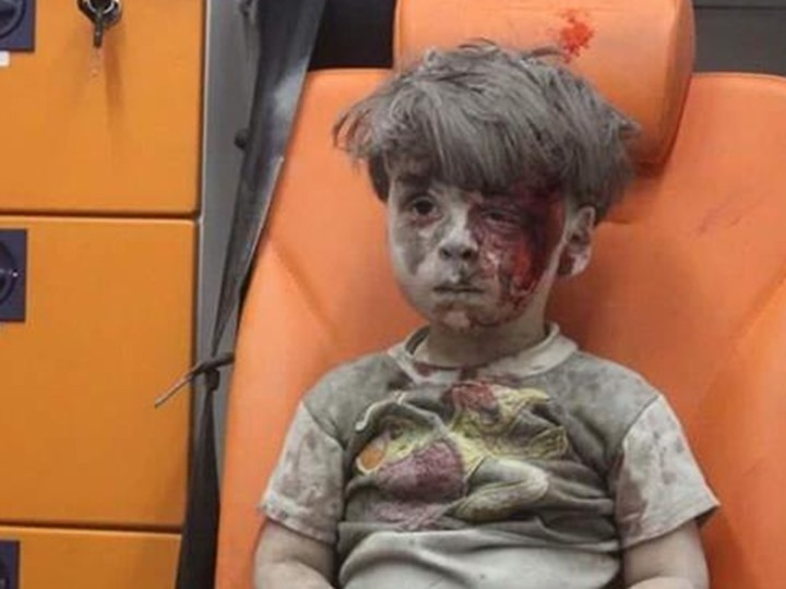 الطفل عمران السوري يظهر من جديد.. هذه المرة مع شقيقته