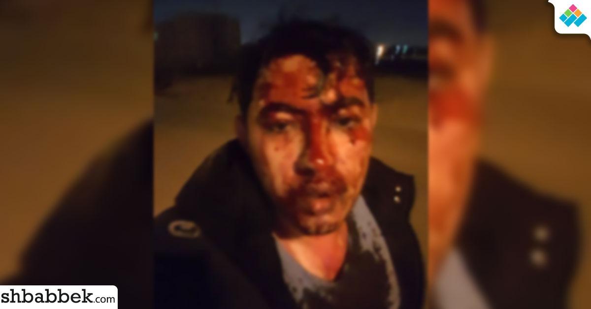http://shbabbek.com/upload/بعد أيام من قتل طالب هندسة بنها.. طالب آخر كاد أن يموت بسبب OLX