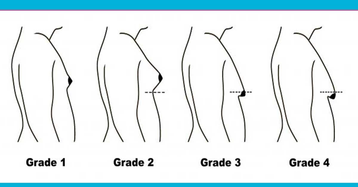 تمارين سهلة لعلاج مشكلة «التثدي» عند الرجال