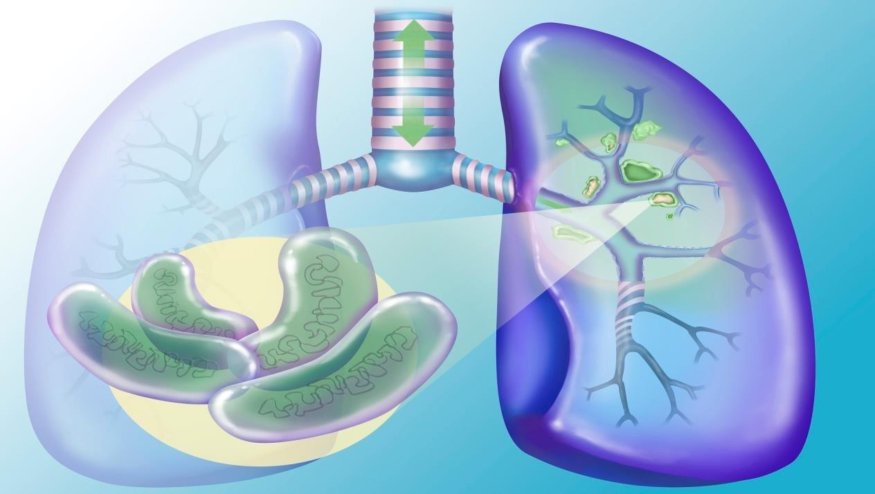 مرض السل.. الأسباب والوقاية والعلاج