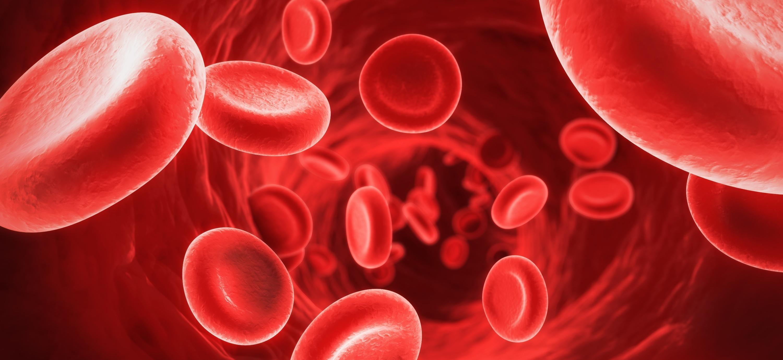فقر الدم .. الأعراض والأسباب والعلاج